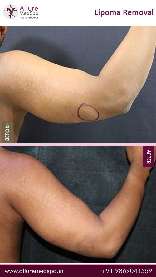 Arm-Lipoma-Removal-Before-After-Picture-Mumbai
