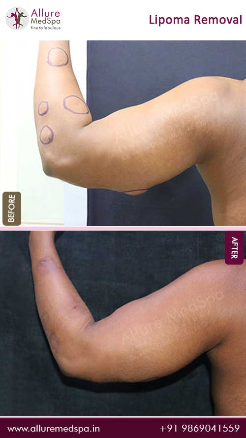 Arm-Lipoma-Removal-Before-After-Result-Mumbai-India