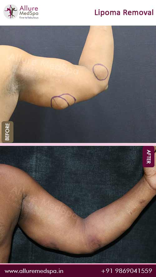 Arm-Lipoma-Removal-Before-After-Result-Mumbai