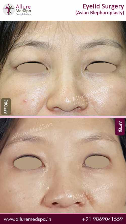 Asian-Blepharoplasty-Surgery-Before-After-Images-Mumbai-India