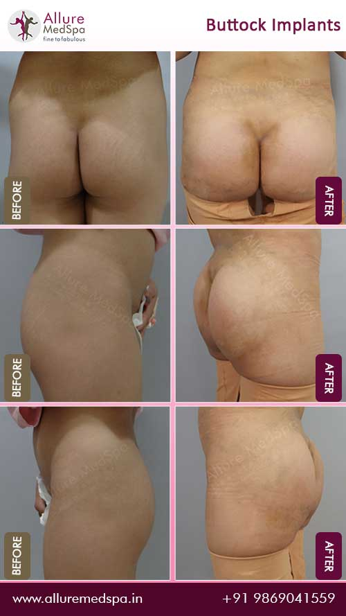 Buttock Augmentation Surgery Before and After Gallery in Mumbai, India