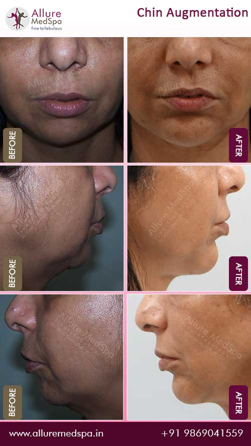 Female Chin Augmentation Surgery Before and After Result in Mumbai, India