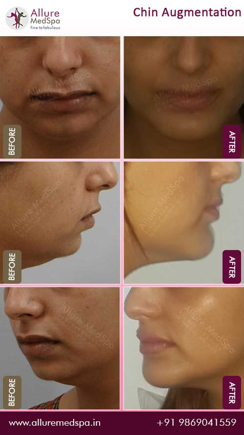 Female Chin Implants Surgery Before and After Result in Mumbai, India