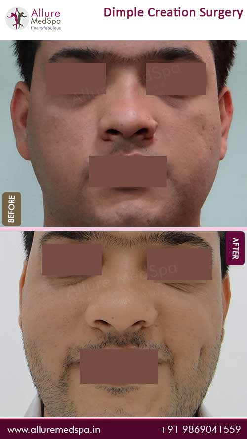 Dimple Surgery Before and After Pictures in Mumbai, India