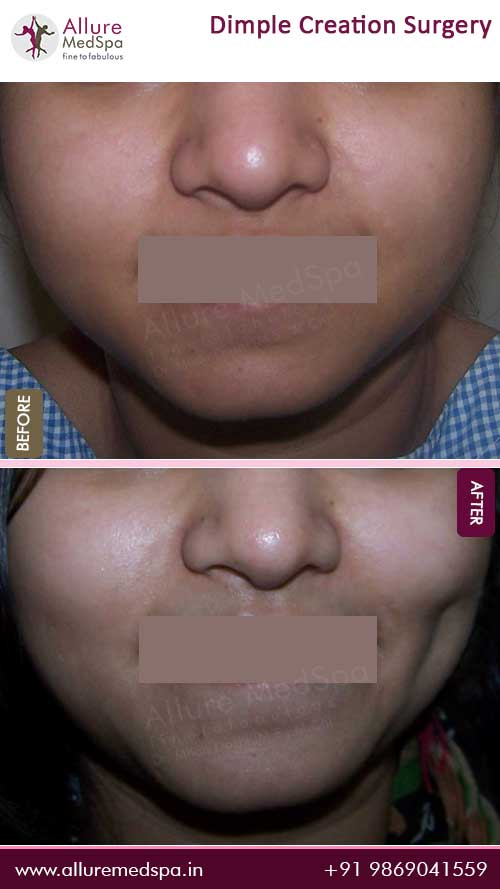 Dimple Surgery Before and After Images in Mumbai, India