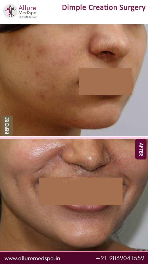 Dimple Creation Before and After Images in Mumbai, India