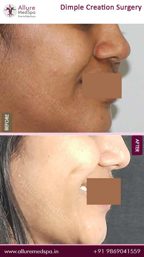 Dimple Surgery Before and After Gallery in Mumbai, India