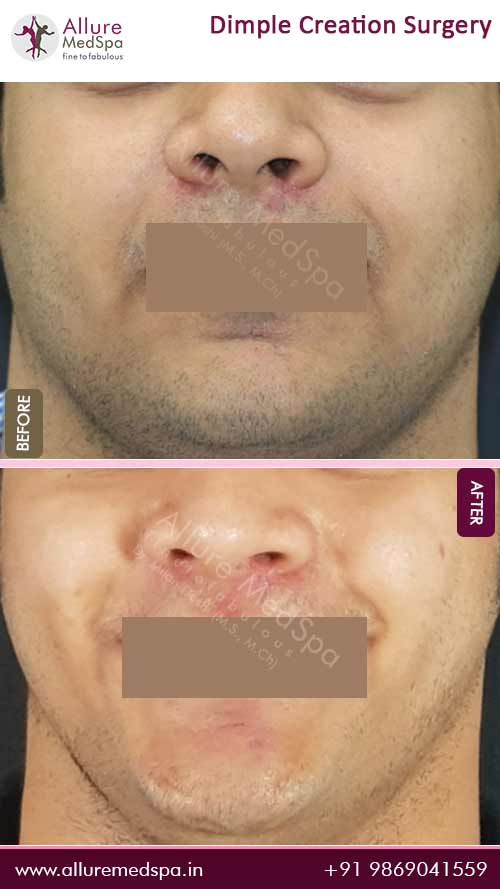 Dimple Creation Surgery Before and After Pictures in Mumbai, India