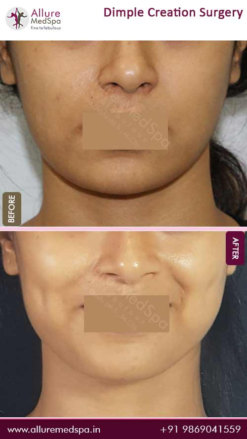 Dimple Creation Before and After Pictures in Mumbai, India