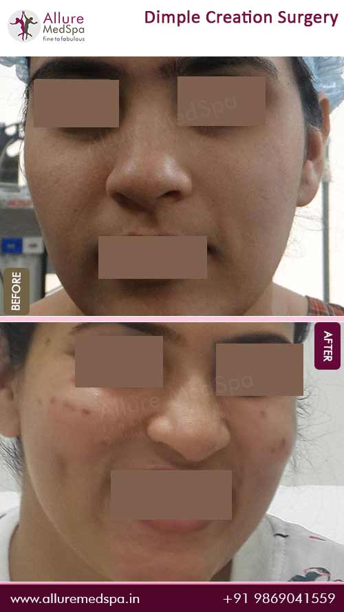 Dimpleplasty Before and After Images in Mumbai, India