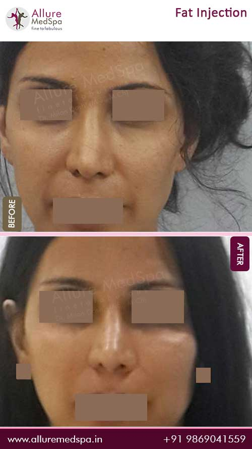Fat-Injection-Before-After-Result-Mumbai