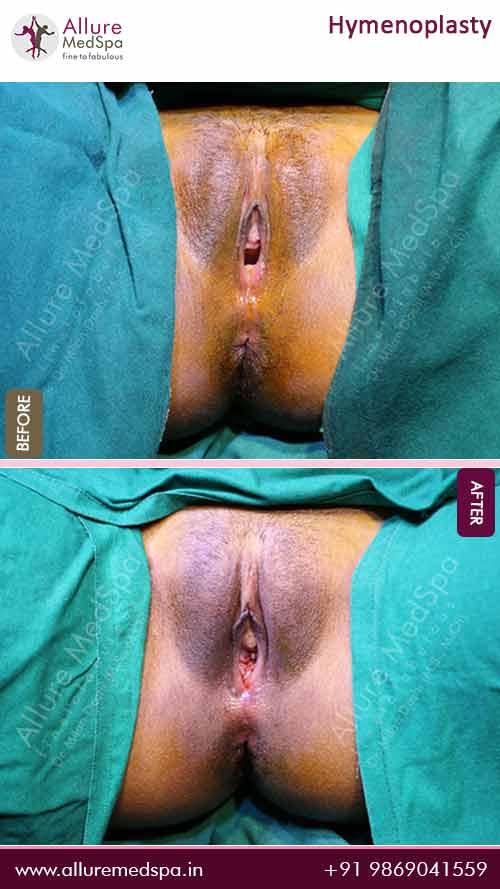 Hymenoplasty-Before-After-Images-Mumbai-India