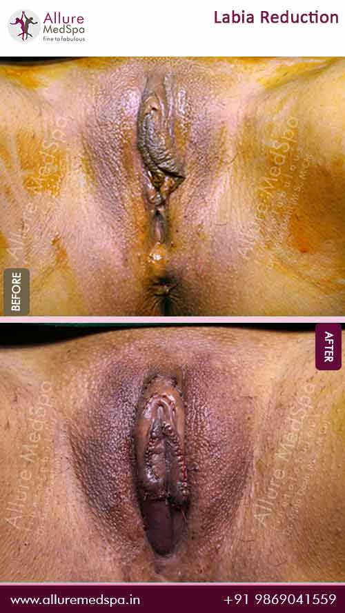 Labia-Reduction-Before-After-Image-Mumbai