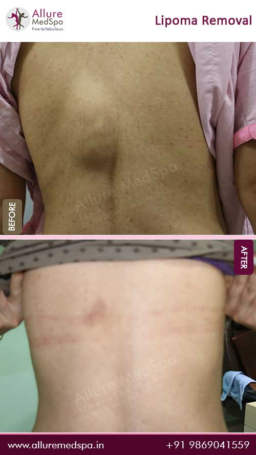 Lipoma-Removal-Before-After-Image-Mumbai