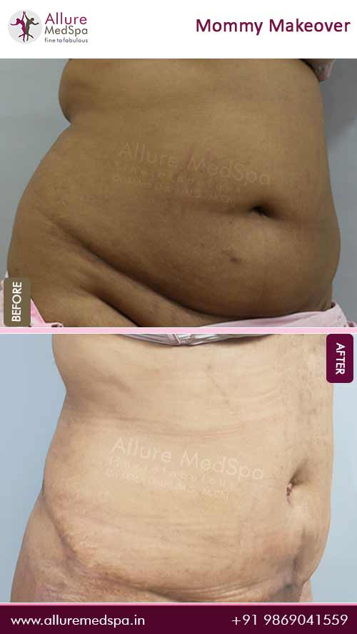 Tummy Tuck Before and After Pictures in Mumbai, India