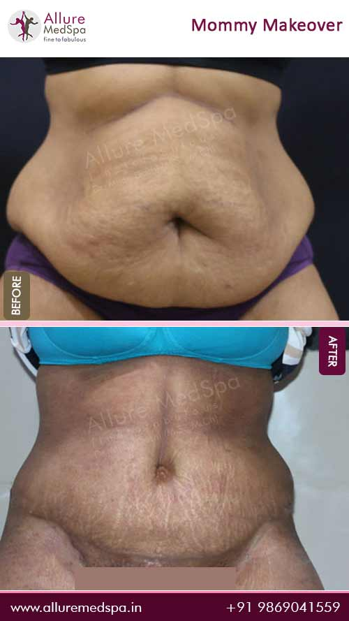 Tummy Tuck Before and After Images in Mumbai, India