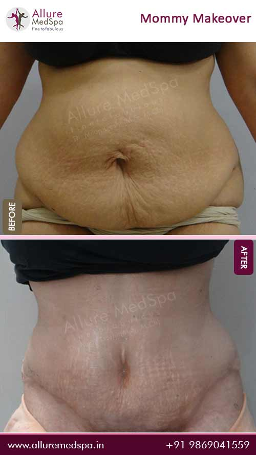 Tummy Tuck Before and After Gallery in Mumbai, India