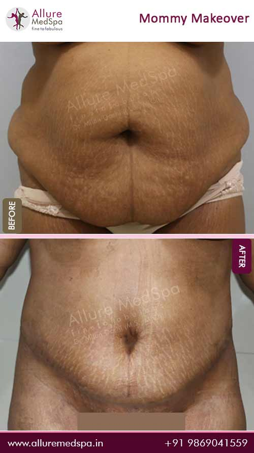 Tummy Tuck Surgery Before and After Photos in Mumbai, India