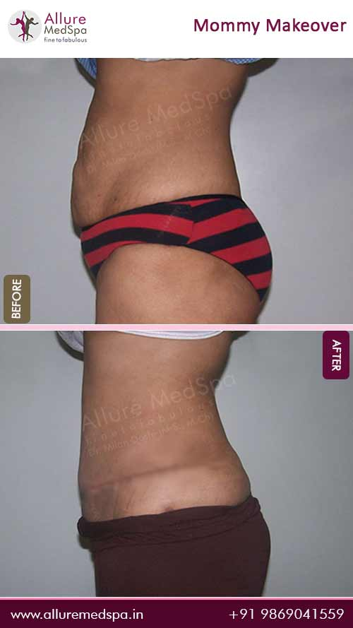 Tummy Tuck Surgery Before and After Pictures in Mumbai, India