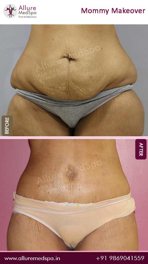 Tummy Tuck Surgery Before and After Result in Mumbai, India