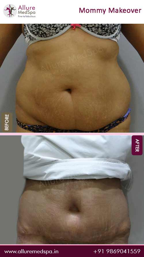 Abdominoplasty Surgery Before and After Photos in Mumbai, India