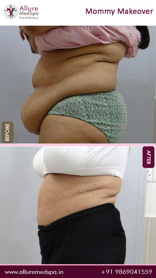Abdominoplasty Before and After Gallery in Mumbai, India