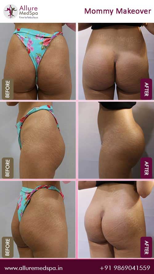Buttock Implants Before and After Images in Mumbai, India