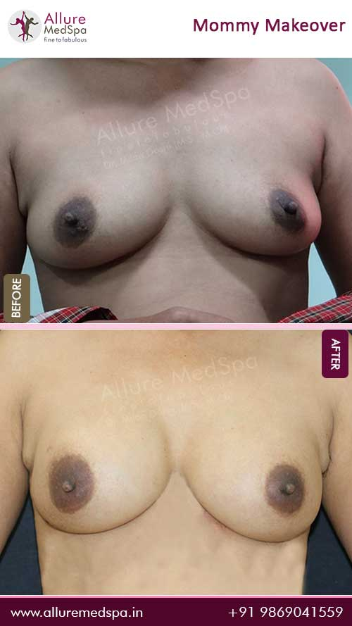 Breast Augmentation Surgery Before and After Photos in Mumbai, India