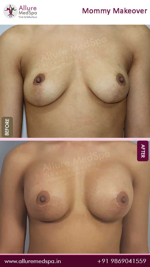 Mommy Makeover Surgery Before and After Result in Mumbai, India
