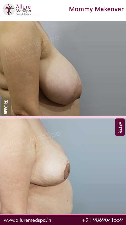 Breast Reduction Before and After Pictures in Mumbai, India