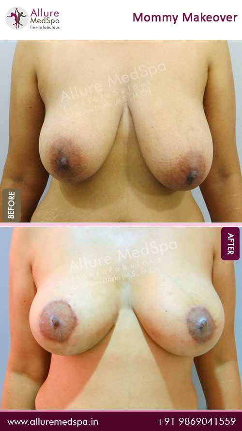 Breast Lift Before and After Pictures in Mumbai, India