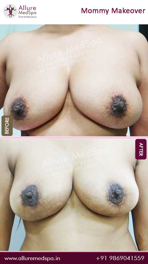 Breast Lift Before and After Images in Mumbai, India