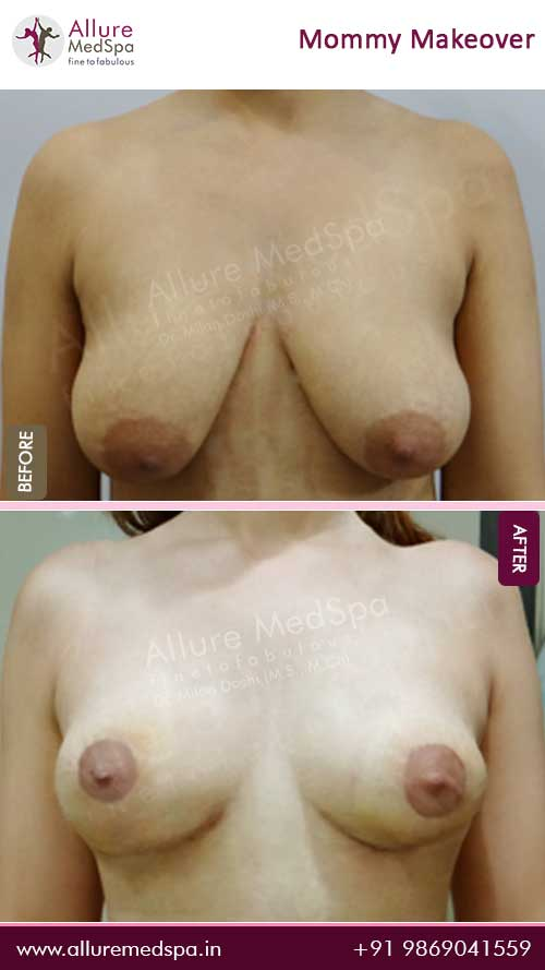 Maxtopexy Before and After Images in Mumbai, India