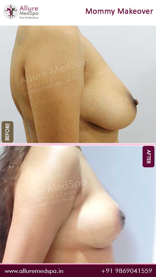 Maxtopexy Before and After Pictures in Mumbai, India
