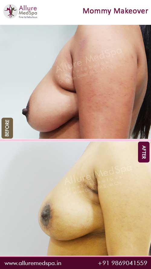 Breast Lift Before and After Result in Mumbai, India