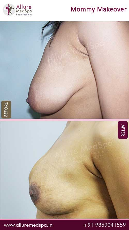 Breast Lift Before and After Gallery in Mumbai, India