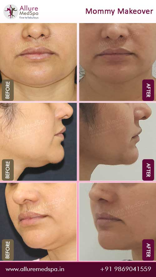 Chin Liposuction Before and After Images in Mumbai, India