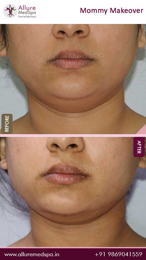 Double Chin Liposuction Before and After Images in Mumbai, India