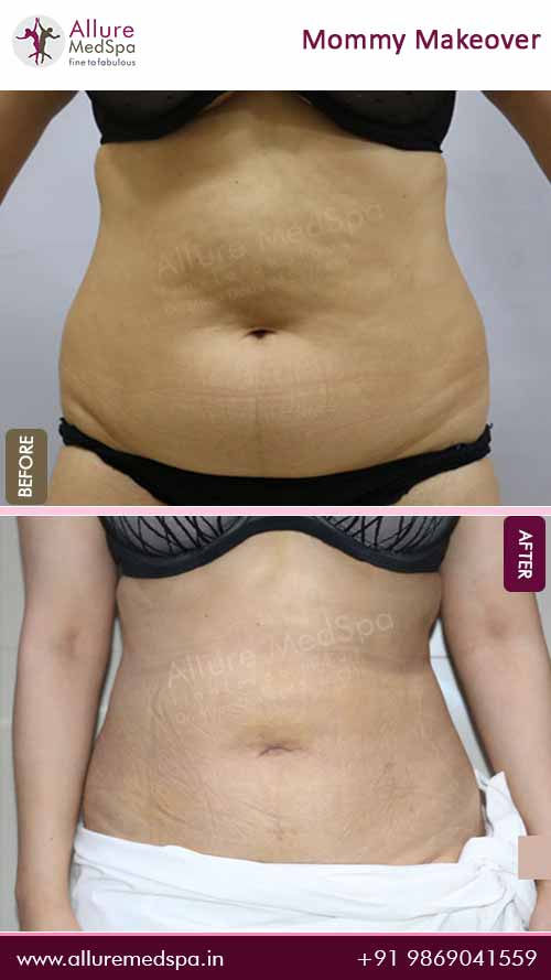 Belly Fat Stomach Liposuction Surgery Before and After Photos in Mumbai, India