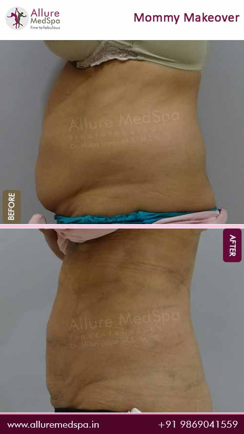 Belly Fat Stomach Lipo Before and After Result in Mumbai, India