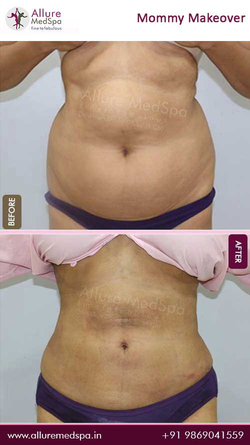 Belly Fat Stomach Liposuction Before and After Pictures in Mumbai, India