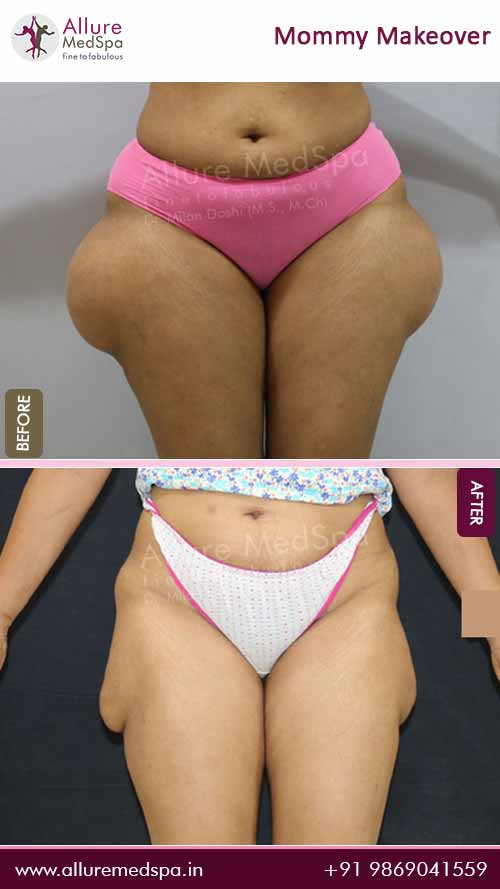Thigh Lipo Before and After Result in Mumbai, India