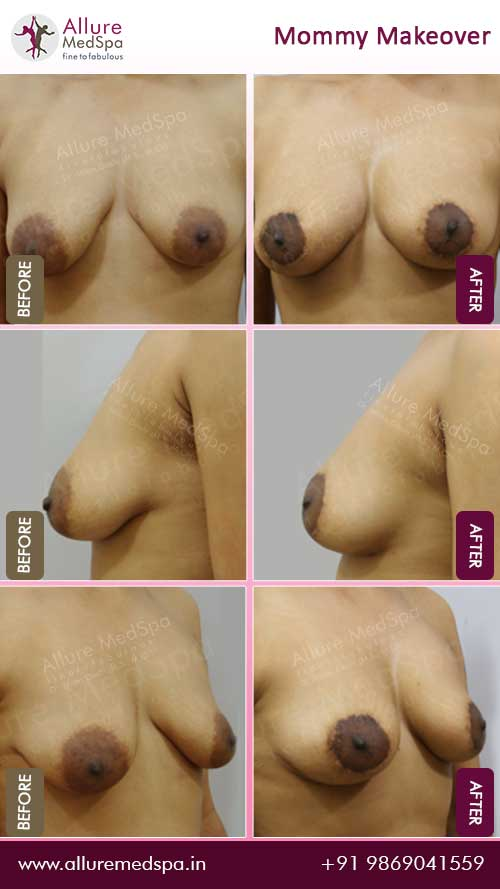 Maxtopexy Surgery Before and After Photos in Mumbai, India