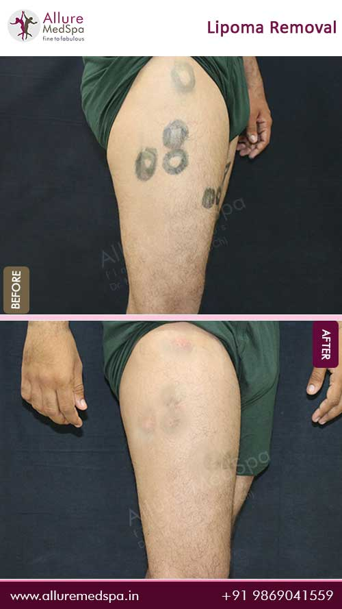Thigh-Lipoma-Removal-Before-After-Photo-Mumbai-India