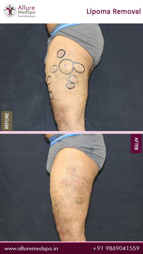 Thigh-Lipoma-Removal-Before-After-Photo-Mumbai