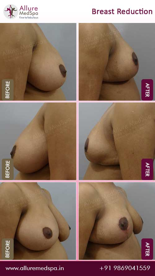 Breast-Reduction-Before-After-Gallery-Mumbai