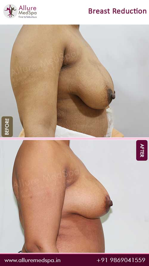 Breast-Reduction-Before-After-Image-Mumbai
