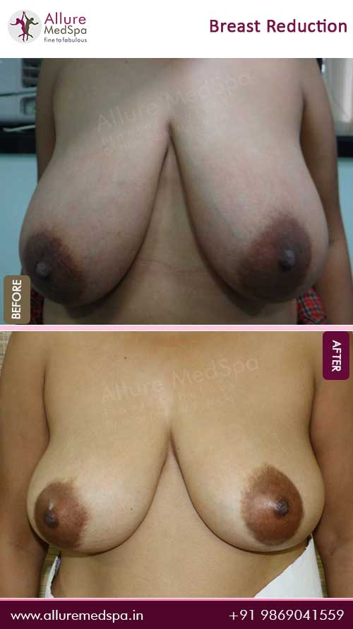 Breast-Reduction-Before-After-Result-Mumbai