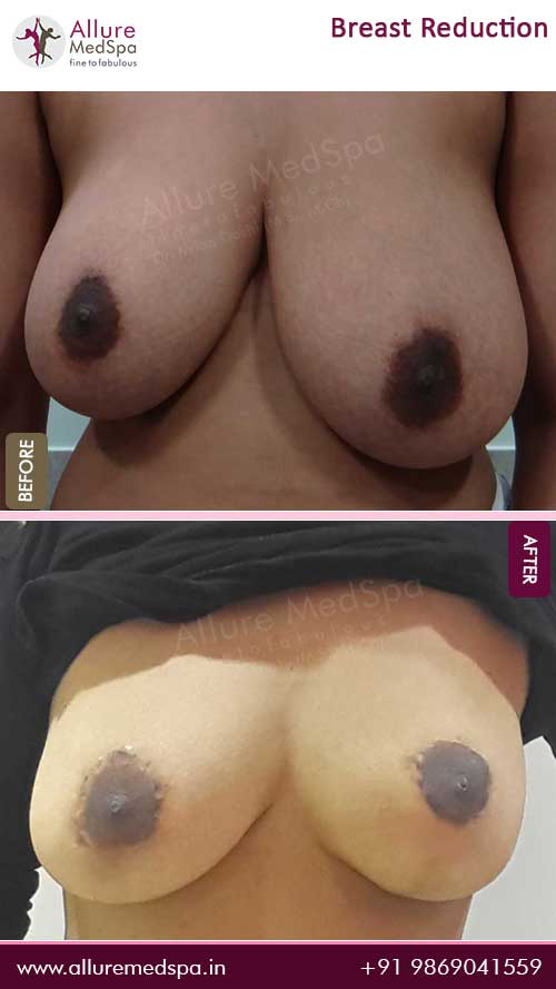 Breast-Reduction-Surgery-Before-After-Gallery-Mumbai