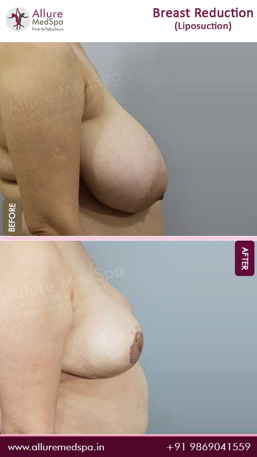 Breast-Reduction-With-Liposuction-Before-After-Gallery-Mumbai